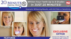 review-20-minute-dental-white